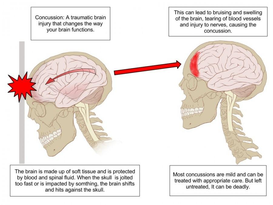 Head injuries raise awareness about concussion protocol