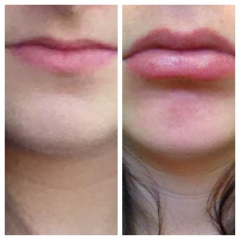 #KylieJennerChallenge proves to be #dangerous