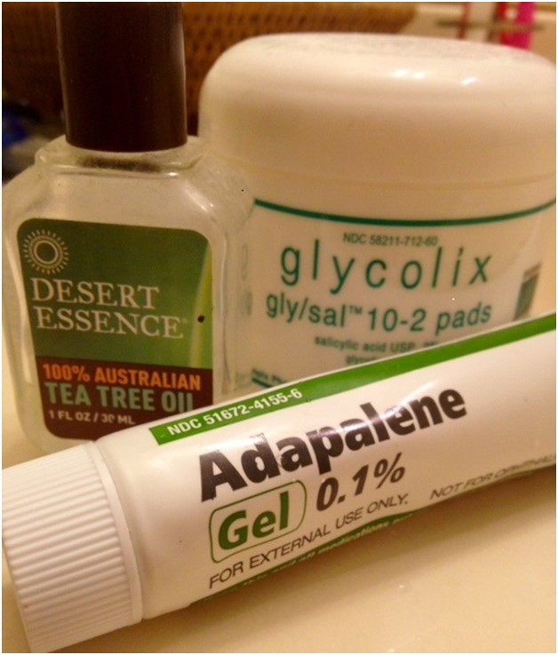 Many students resort to various creams and gels to attempt to manage their acne.